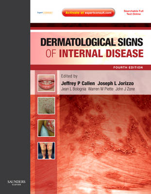 Dermatological Signs of Internal Disease