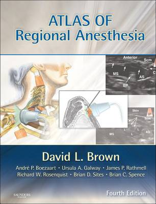 Atlas of Regional Anesthesia: Expert Consult - Online and Print (Hardback)
