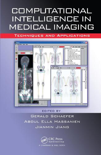 Computational Intelligence in Medical Imaging: Techniques and Applications (Hardback)