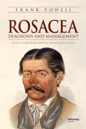 Rosacea: Diagnosis and Management (Hardback)
