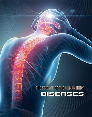 Science of the Human Body: Diseases - Science of the Human Body (Hardback)