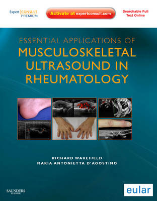 Essential Applications of Musculoskeletal Ultrasound in Rheumatology: Expert Consult Premium Edition: Enhanced Online Features and Print (Hardback)