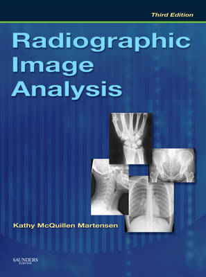 Radiographic Image Analysis (Hardback)