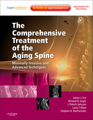 The Comprehensive Treatment of the Aging Spine: Minimally Invasive and Advanced Techniques