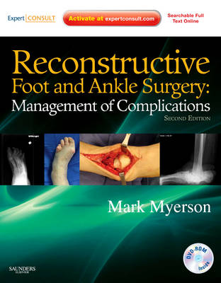 Reconstructive Foot and Ankle Surgery: Management of Complications: Expert Consult - Online, Print, and DVD (Hardback)