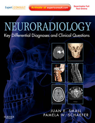Neuroradiology: Key Differential Diagnoses and Clinical Questions: Expert Consult - Online and Print (Hardback)