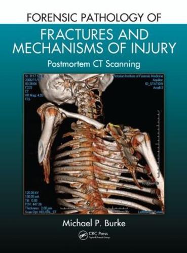 Forensic Pathology of Fractures and Mechanisms of Injury: Postmortem CT Scanning (Hardback)