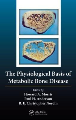 The Physiological Basis of Metabolic Bone Disease (Hardback)