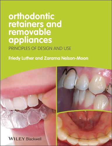 Orthodontic Retainers and Removable Appliances: Principles of Design and Use (Paperback)