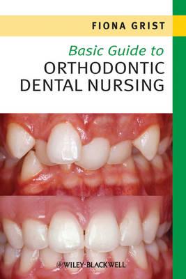 Basic Guide to Orthodontic Dental Nursing - Basic Guide Dentistry Series (Paperback)