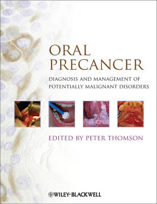 Oral Precancer: Diagnosis and Management of Potentially Malignant Disorders (Hardback)