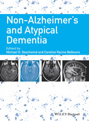 Non-Alzheimer's and Atypical Dementia (Hardback)
