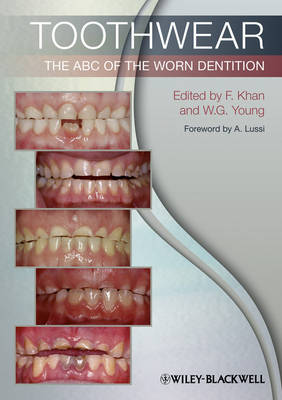 Toothwear: The ABC of the Worn Dentition (Paperback)