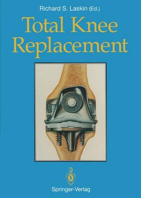 Total Knee Replacement (Paperback)
