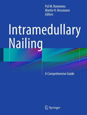 Intramedullary Nailing: A Comprehensive Guide (Hardback)