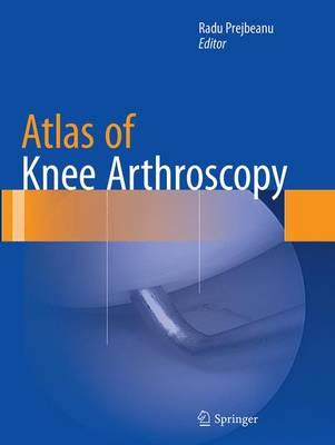 Atlas of Knee Arthroscopy (Paperback)