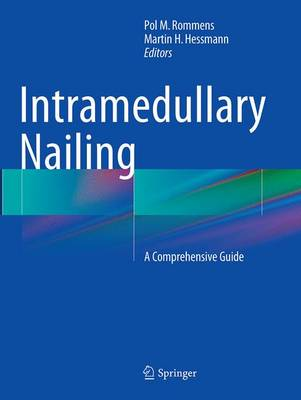 Intramedullary Nailing: A Comprehensive Guide (Paperback)
