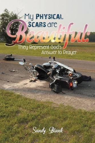 My Physical Scars are Beautiful: They Represent God's Answer to Prayer (Paperback)