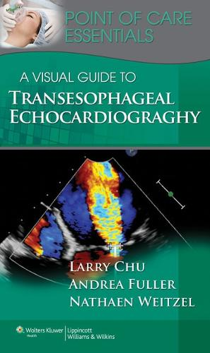 A Visual Guide to Transesophageal Echocardiography - Point of Care Essentials (Spiral bound)