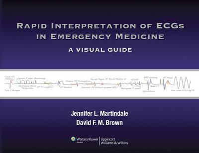 Rapid Interpretation of ECGs in Emergency Medicine: A Visual Guide (Paperback)