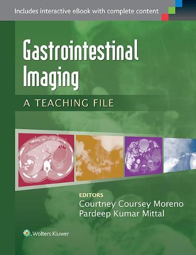 Gastrointestinal Imaging: A Teaching File - LWW Teaching File Series (Paperback)
