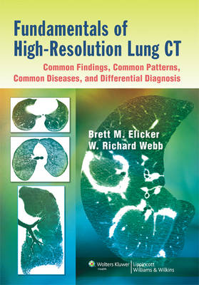 Fundamentals of High-Resolution Lung CT: Common Findings, Common Patterns, Common Diseases, and Differential Diagnosis: Common Findings, Common Patterns, Common Diseases, and Differential Diagnosis (Paperback)