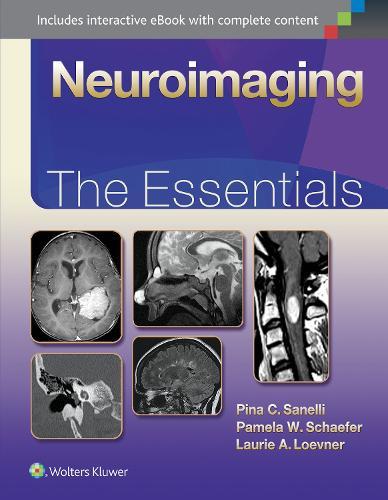 Neuroimaging: The Essentials - Essentials Series (Hardback)