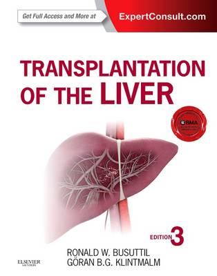 Transplantation of the Liver (Hardback)