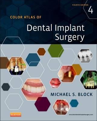 Color Atlas of Dental Implant Surgery (Hardback)