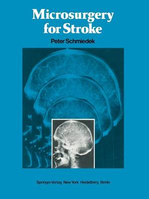 Microsurgery for Stroke (Paperback)
