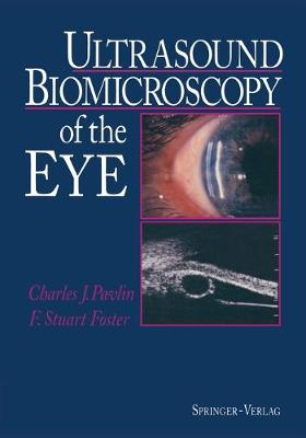 Ultrasound Biomicroscopy of the Eye (Paperback)