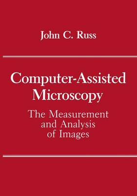 Computer-Assisted Microscopy: The Measurement and Analysis of Images (Paperback)