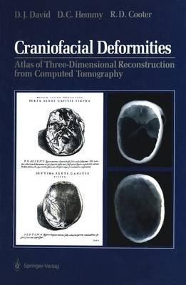 Craniofacial Deformities: Atlas of Three-Dimensional Reconstruction from Computed Tomography (Paperback)