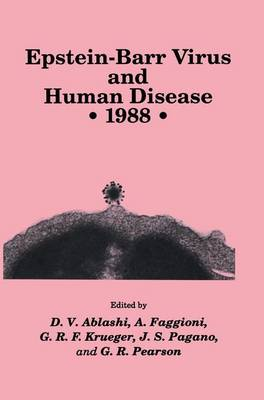 Epstein-Barr Virus and Human Disease * 1988 - Experimental Biology and Medicine 20 (Paperback)