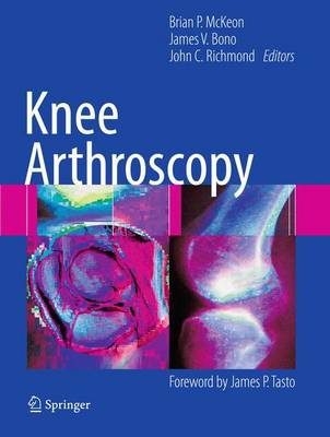 Knee Arthroscopy (Paperback)