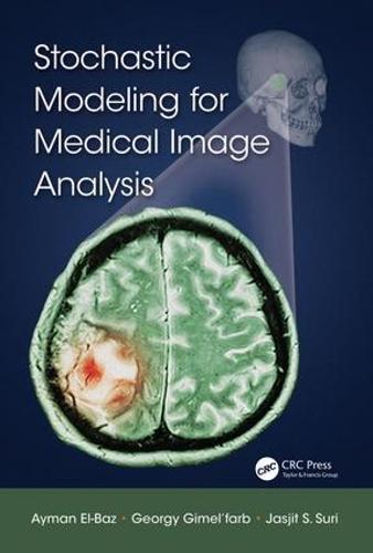 Stochastic Modeling for Medical Image Analysis (Hardback)