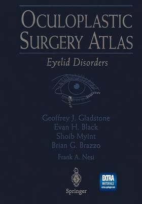 Oculoplastic Surgery Atlas: Eyelid Disorders (Paperback)