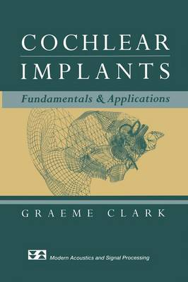 Cochlear Implants: Fundamentals and Applications - Modern Acoustics and Signal Processing (Paperback)