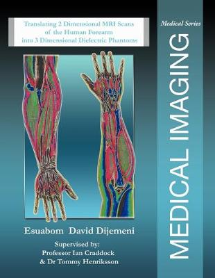 Medical Imaging: Translating 2 Dimensional MRI Scans of the Human Forearm into 3 Dimensional Dielectric Phantoms (Paperback)