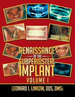 Renaissance of the Subperiosteal Implant Volume I (Paperback)