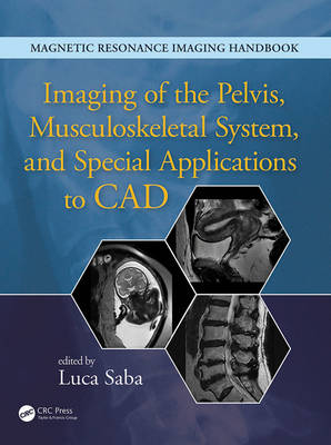 Imaging of the Pelvis, Musculoskeletal System, and Special Applications to CAD (Hardback)