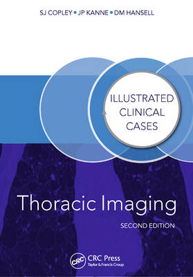 Thoracic Imaging: Illustrated Clinical Cases, Second Edition - Illustrated Clinical Cases (Paperback)