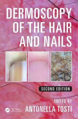 Dermoscopy of the Hair and Nails (Hardback)