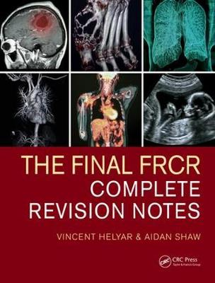 The Final FRCR: Complete Revision Notes (Paperback)