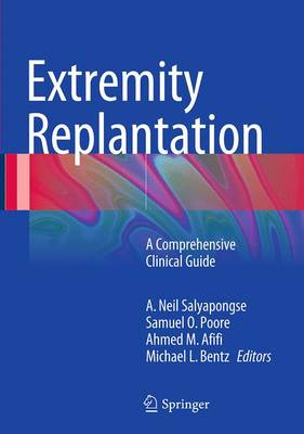 Extremity Replantation: A Comprehensive Clinical Guide (Paperback)