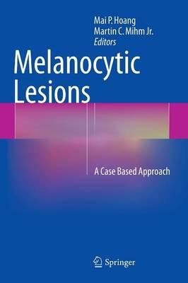 Melanocytic Lesions: A Case Based Approach (Hardback)