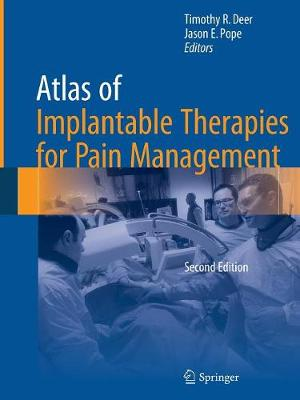 Atlas of Implantable Therapies for Pain Management (Paperback)