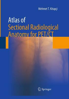 Atlas of Sectional Radiological Anatomy for PET/CT (Paperback)
