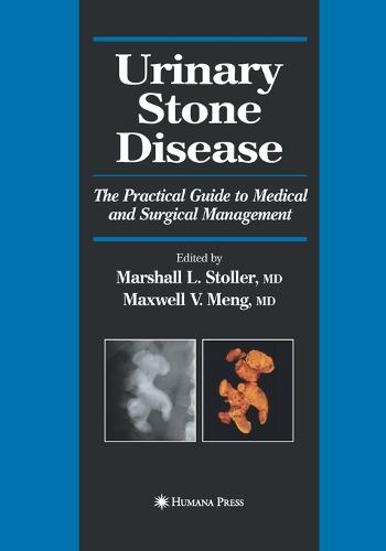 Urinary Stone Disease: The Practical Guide to Medical and Surgical Management - Current Clinical Urology (Paperback)
