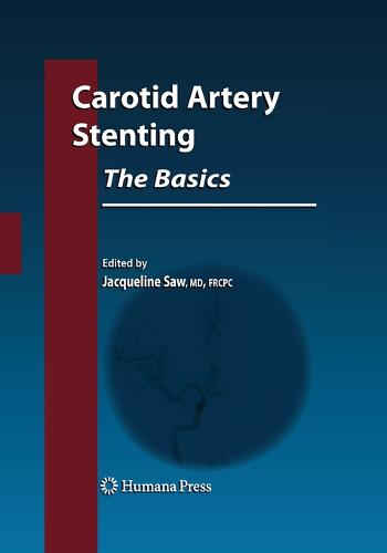 Carotid Artery Stenting: The Basics - Contemporary Cardiology (Paperback)